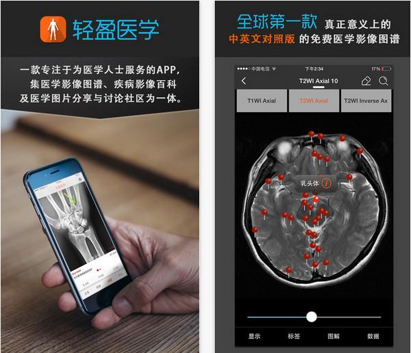 轻盈医学app